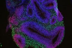 Cerebal organoid (fluorescence)